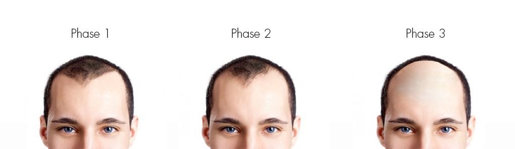 Chute des cheveux après un implant de cheveux - Extension du cuir chevelu