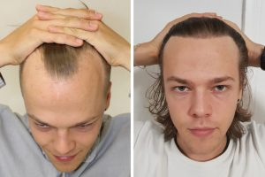 Traiter la calvitie masculine avec greffe de cheveux - Bruxelles
